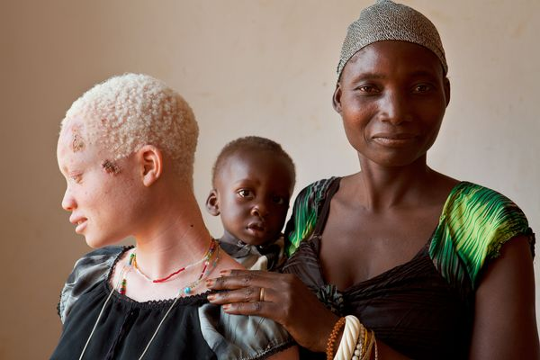 tanzania abinism skin cancer
